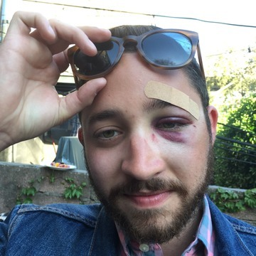 "Man Sucker-Punched On LES ""Because You Look Like Shia LaBeouf"""
